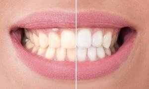 歯の黄ばみの原因と解消法