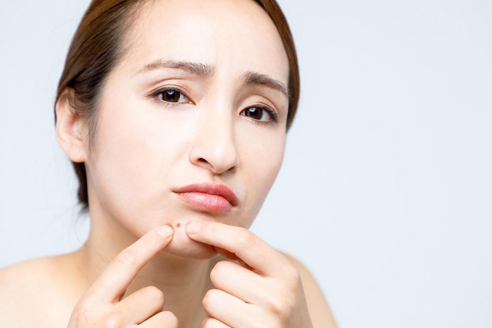 目立つ&痛い「あごの吹き出物」をセルフケアで治す6つの方法